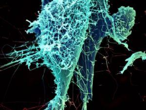 Guinée : Des médecins et chercheurs se mobilisent pour combattre le virus Ébola